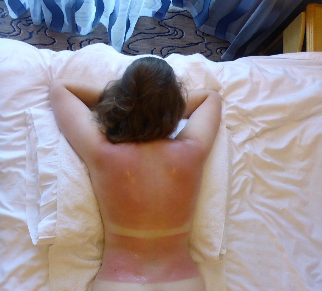 Woman's back with extremely bad sunburn